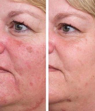 Skinboost - hudforyngelse